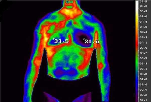 Инфракрасное излучение тела человека